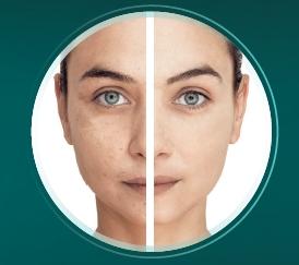 Reducer Anwendung Babor Beauty Spa Karin Hagen in Hamburg